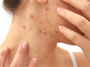 kisolite for skin conditions